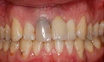 Dental Implants Portishead - Before Treatment