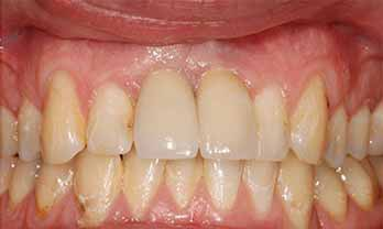 Dental implants portishead - after Treatment