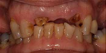 Upper Teeth in a Day - Before Treatment