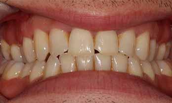 Portishead Teeth Whitening - Before Treatment