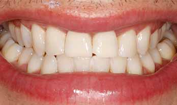 Portishead Teeth Whitening - After Treatment