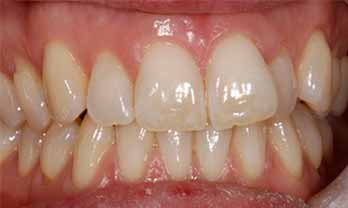 Six Month Smiles Portishead - Before Treatment