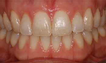 Six Month Smile Portishead - After Treatment