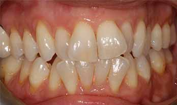 Invisalign Portishead - Before Treatment