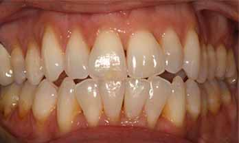 Invisalign Portishead - After Treatment