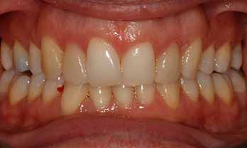Invisalign and Veneers Portishead - Before Treatment