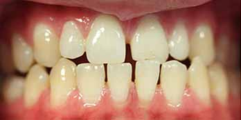 Invisalign and composite Portishead - Before Treatment