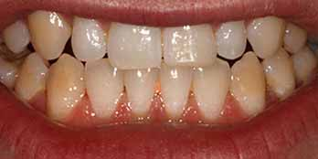 Invisalign and composite Portishead - After Treatment