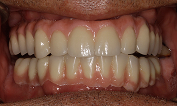 After Treatment - Tooth Whitening Portishead