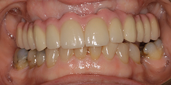 Upper Teeth in a Day - After Treatment